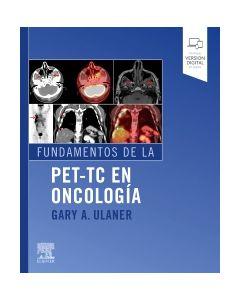 Fundamentos de la PET-TC en oncología