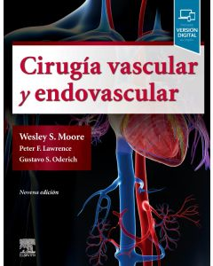 Cirugía vascular y endovascular